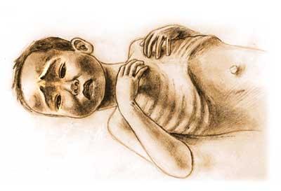 enfant-de-la-famine-2